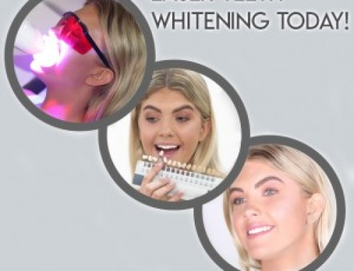 Which teeth whitening training course?